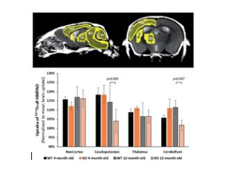 Urinary ketone body loss leads to degeneration of brain white matter in elderly SLC5A8-deficient mice