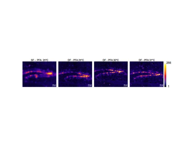 A novel protocol to detect green fluorescent protein in unfixed, snap‑frozen tissue